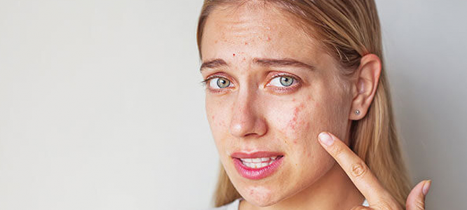 Konopljina smola - končno rešitev za aknasto in mastno kožo