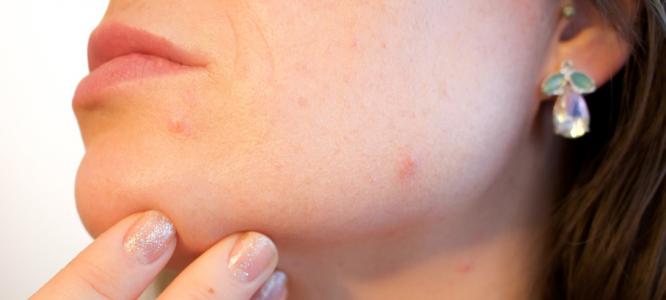 Imam akne in suho kožo – kaj naj naredim?