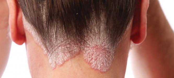 Zakaj je CBD olje odlično za seboroični dermatitis?