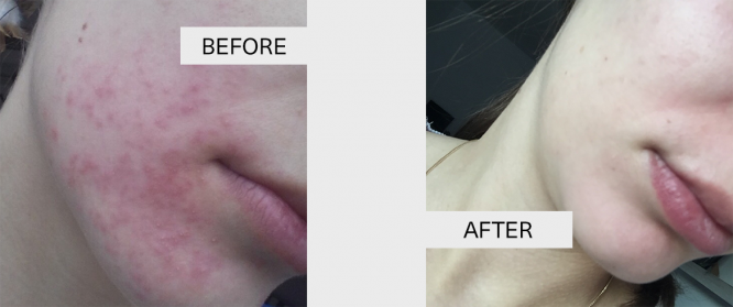 Interview: Pimples and red spots disappeared within a week