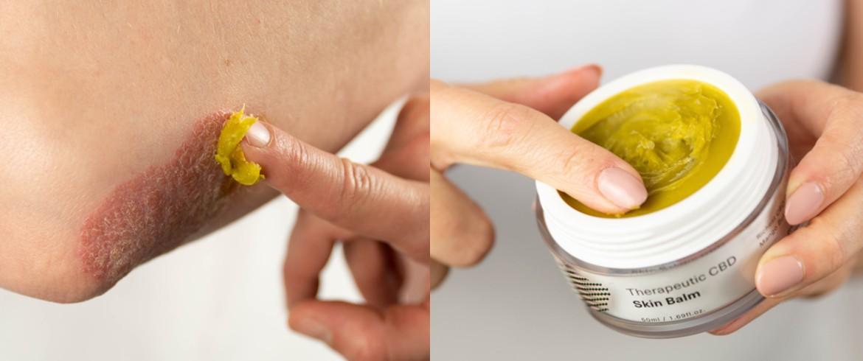 hemp seed oil - healthy skin - eczema prone skin