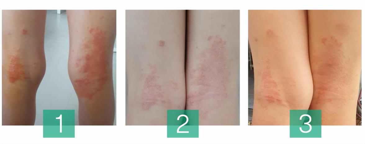 Hemptouch_dermatitis_balms