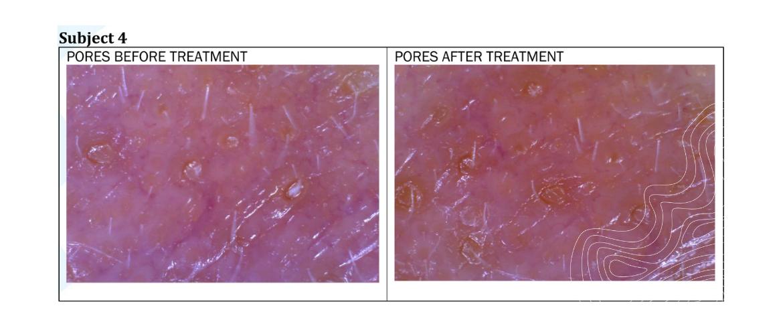CBD for acne treatment